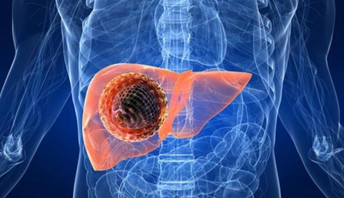 Danas je Svjetski dan hepatitisa - ova bolest ne može čekati