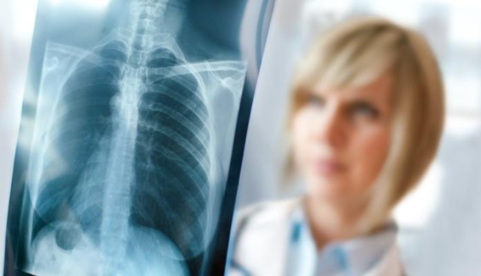 Od upale pluća svakih 39 sekundi umre jedno dijete