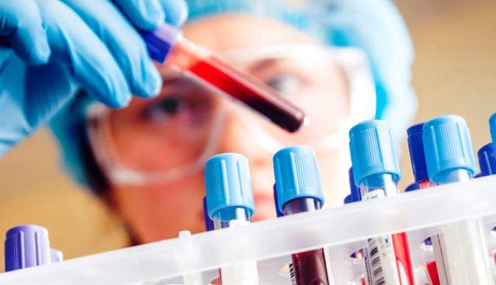 Rizik od koronavirusa smanjen kod onih koji imaju nultu krvnu grupu