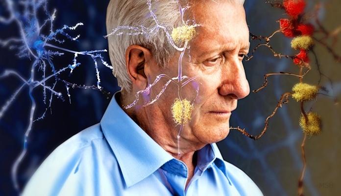 Čovjek prije 100 godina nije stizao da doživi Alzheimerovu bolest