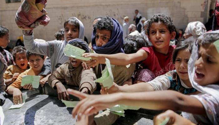 U Jemenu od gladi umrlo najmanje 85.000 djece do pet godina