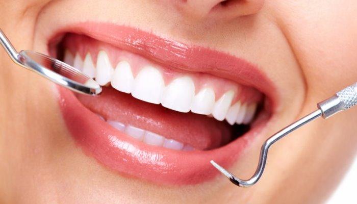 Како избелити зубе куркумом