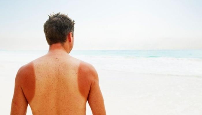 Povećana smrtnost od raka kože kod muškaraca