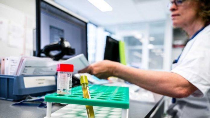 Stručnjaci upozoravaju na nepouzdanost brzih testova