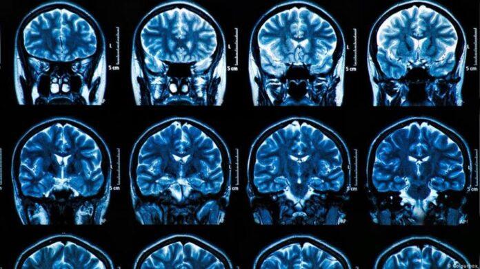 Koronavirus utiče i na mozak