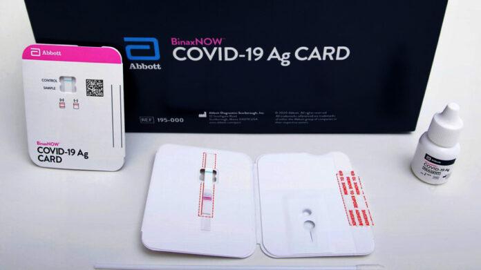 Najnoviji testovi na koronavirus koštat će 5 dolara, rezultati za 15 minuta