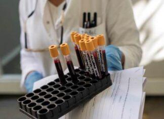 Koronavirus Test